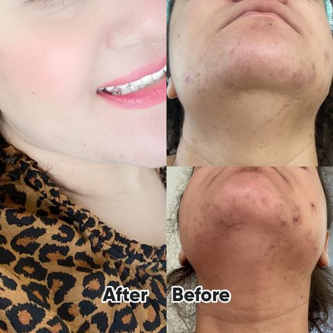Update, extremely fast results in just 3 weeks!!