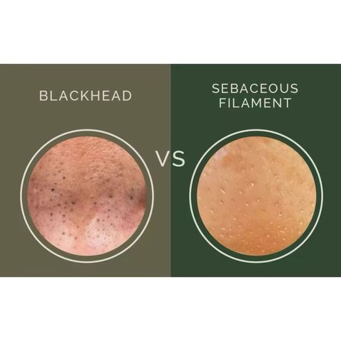 Do You Have Blackheads or Sebaceous Filaments?