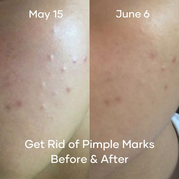 How I Get Rid of Pimple Marks in 3 Weeks! | Cherie