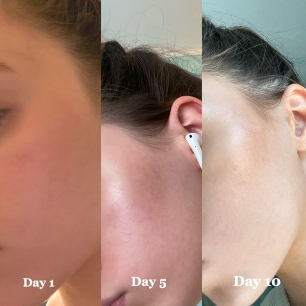 What happened after 10 days of a vitamin C line   Cherie