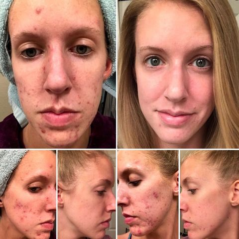 What Finally Helped My Hormonal Acne!