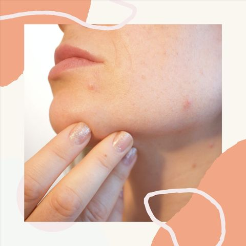 Understanding Your Cystic Acne and Choosing Safe Ingredients