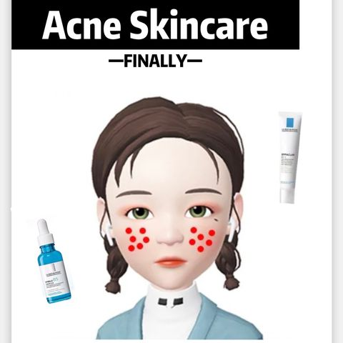 Finally! My acnes are gone!