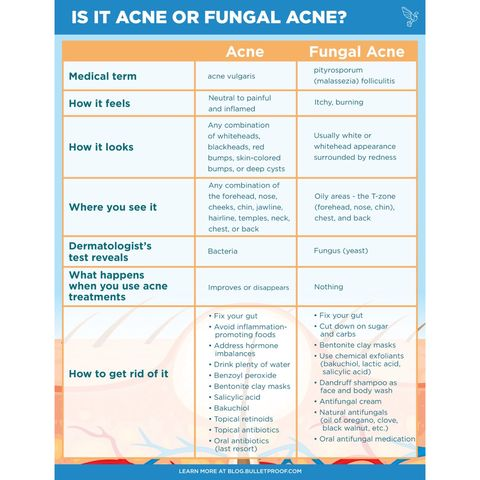 Acne.. where it is & how to treat ..