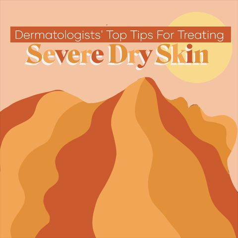 Dermatologists' Top Tips For Treating Severe Dry Skin