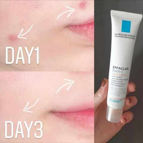 This Drugstore Product Works AMAZING for Hormonal Acne❗