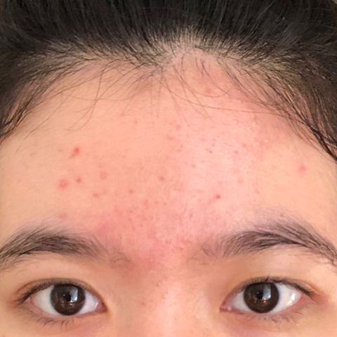 [Helping] Finding a moisturizer for acne rosacea
