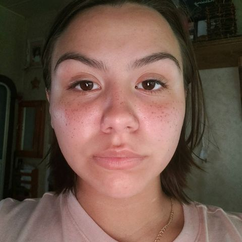 My Skin! Any Suggestions?