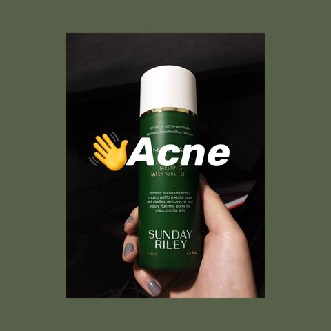 👋Bye Bye Acne! Thanks to this babe👉👉