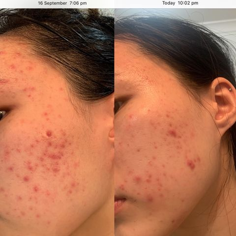These products improved my acne in 3 weeks