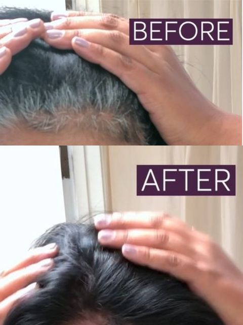 Say Goodbye to Hair Dye: How to Get Rid of Gray Hair Naturally