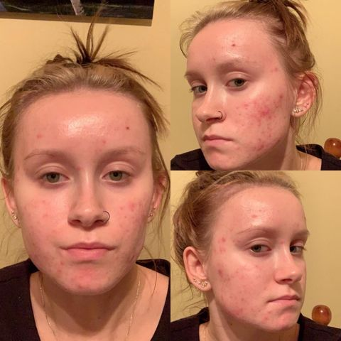 Day 1 of accutane
