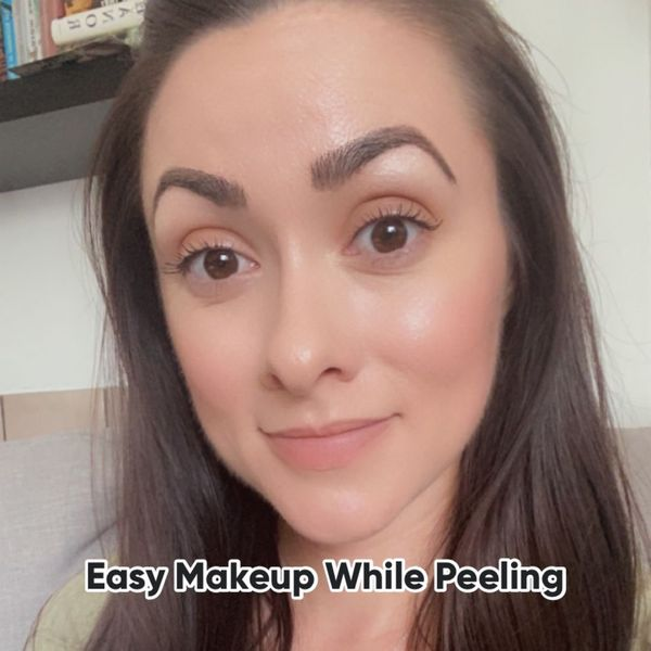 Makeup You Can Wear While Peeling | Cherie