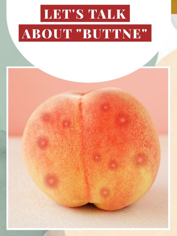 Are you dealing with butt acne? Read this!  | Cherie