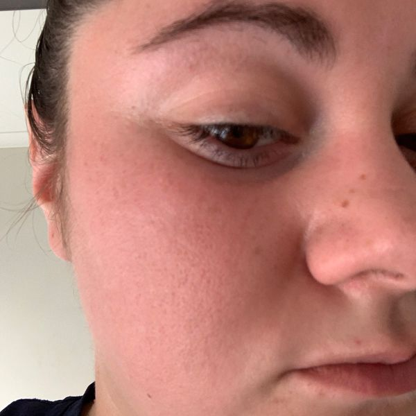 Help with red skin on my face please!!!  | Cherie