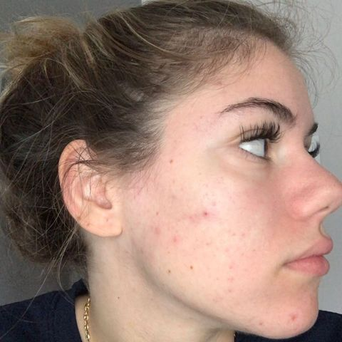 Suggestions on how to get rid of acne