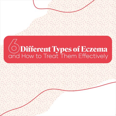 6 Different Types Of Eczema And How To Treat Them Effectively