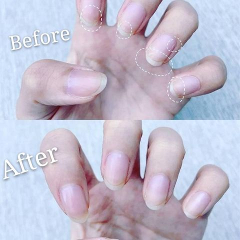 Easy-treatment for my nails