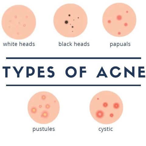 types of acne & how to treat each kind