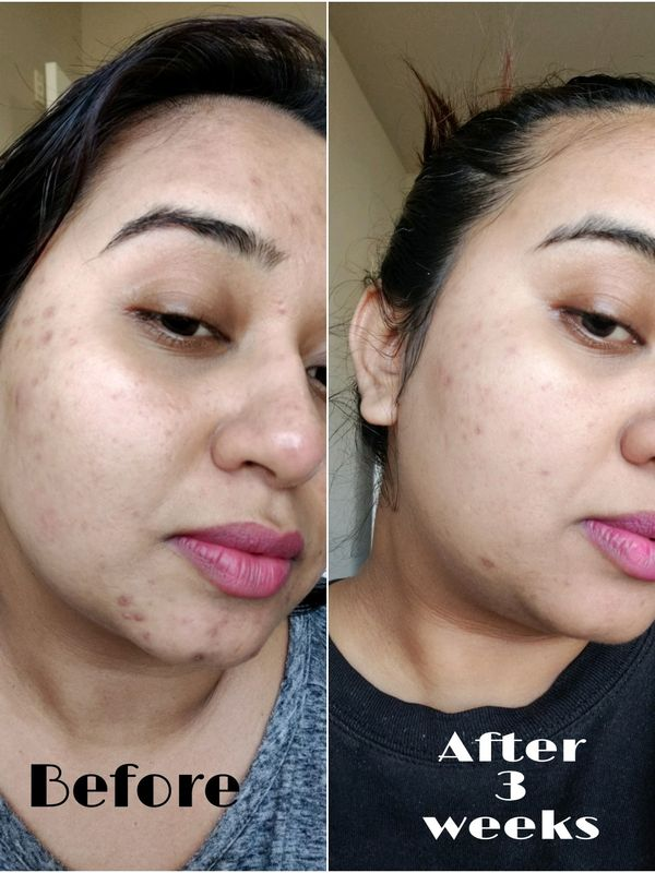 ✔️Results! Let's get rid of Hyperpigmentation! ✨ | Cherie