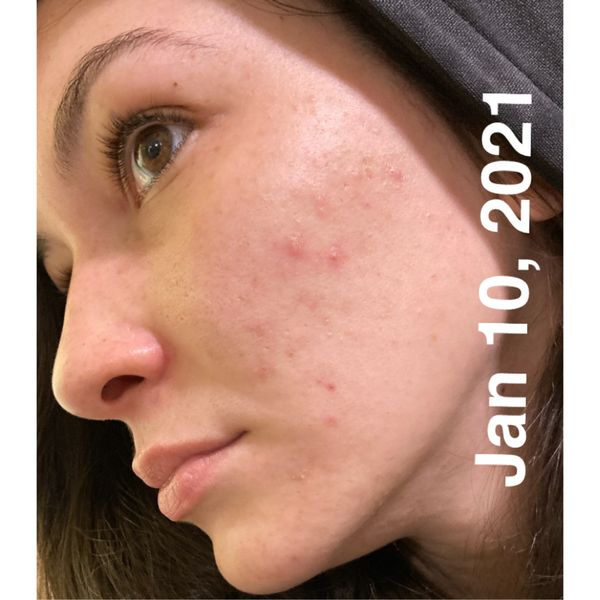 Check out my skin journey in only 2 weeks! | Cherie