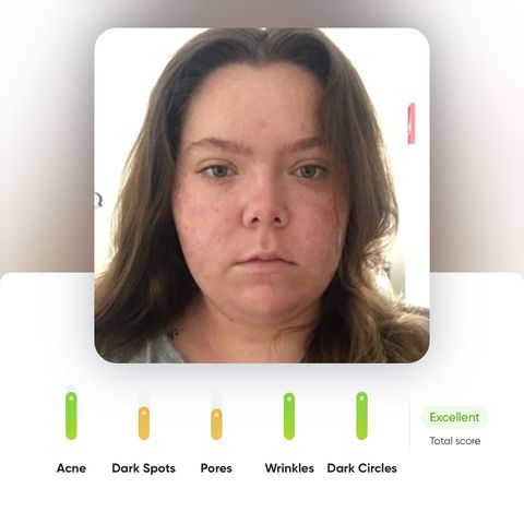 1 month on Accutane/isotretinoin