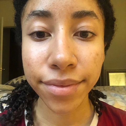 Week 3 of Tretinoin and Spirinolactone Journey