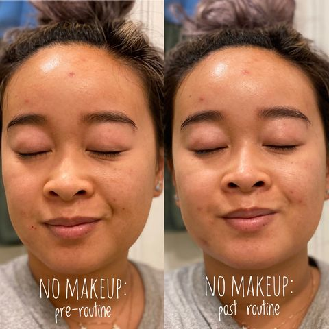 glowing skin w/o makeup for acne skin [read!]