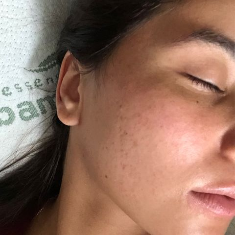 Getting rid of Acne and scars w/ The ordinary