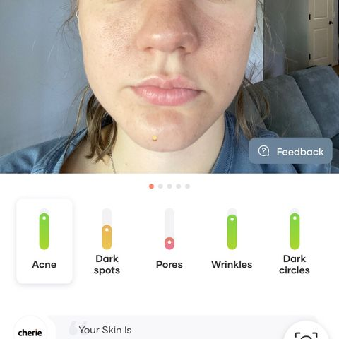Help me with my huge pores??