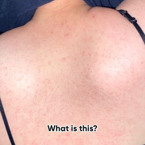 What Back acne is this ? Help me please