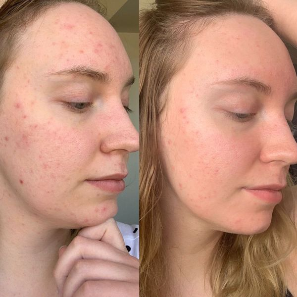 How do I Best protect my skin from UV damage?  | Cherie