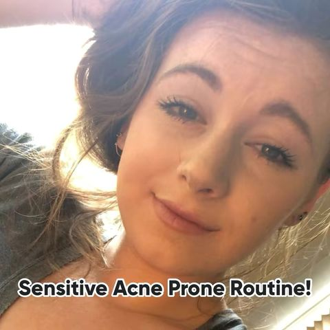 Sensitive Acne Prone Routine