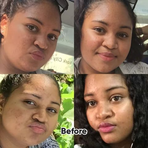Skincare Journey - How to: Clear Skin✨✨