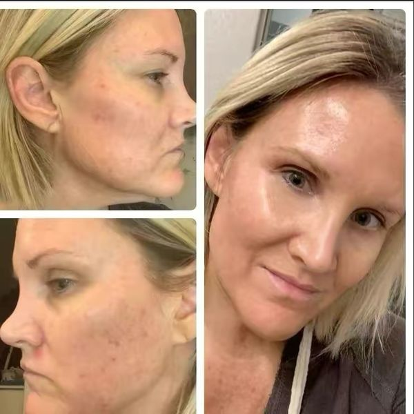 My skincare journey - learn from my mistakes  | Cherie