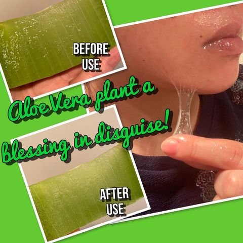 Aloe Vera plant saved my dry, red, itchy skin!!