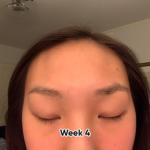 castor oil 4 week update