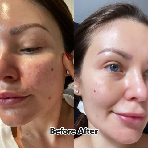 My skin journey- why I'm creating my product