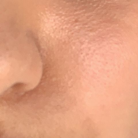 What are these dots on my cheeks?