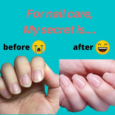 Dos✅ and Don'ts❌ for Nail  Cuticle Treatments!
