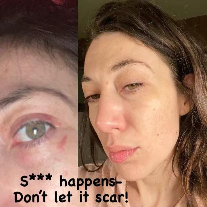 Healed in under 1 week! How I prevented scarring