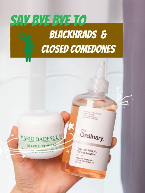 Bye! Blackheads And Closed Comedones! Thank Goodness For...