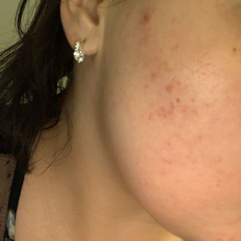 Healing acne and leftover scarring