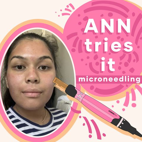 Trying Professional Microneedling To Combat Acne & Scarring