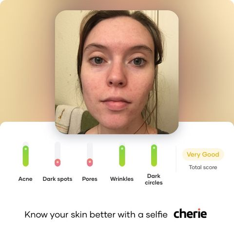 Suggestions for Pores and Dark Spots?