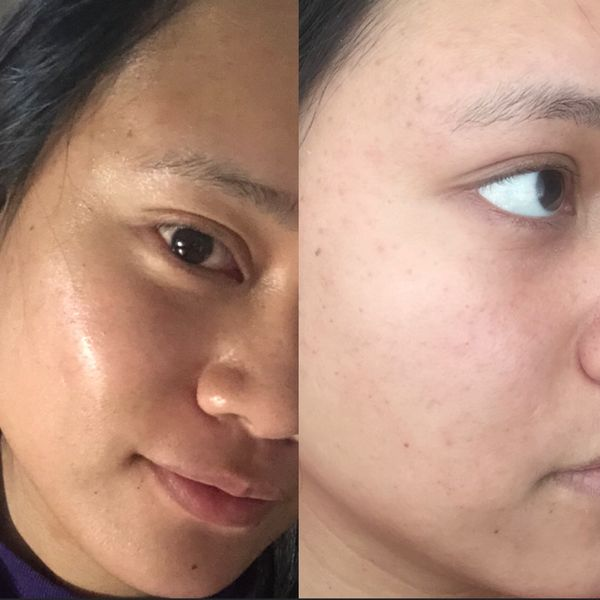 The result to an effective skin care routine! | Cherie