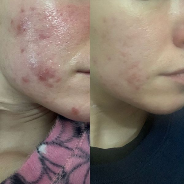 8 Do's and Don'ts for Hormonal Acne | Cherie