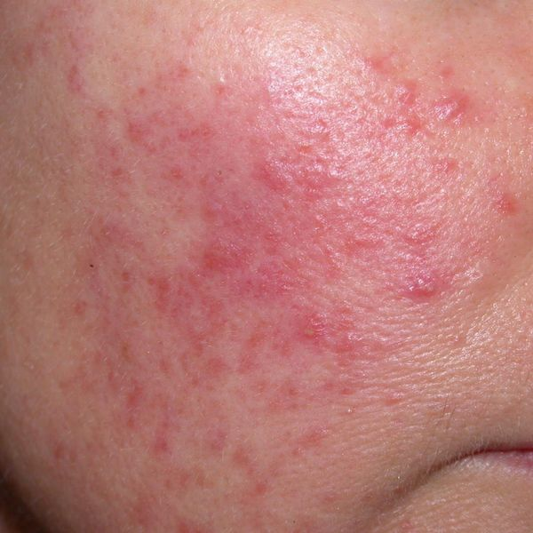 THIS IS NOT ACNE! Have you experienced this? | Cherie
