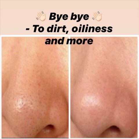 8 Simple Ways To Unclog Enlarged Nose Pores