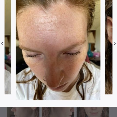 Product recs for this type of acne on forhesd?!